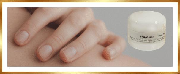 propolis eczema
